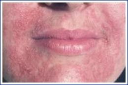 Dermatita periorală